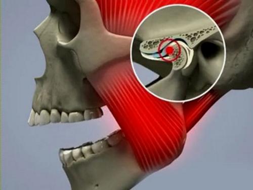 Остеопороз челюсти