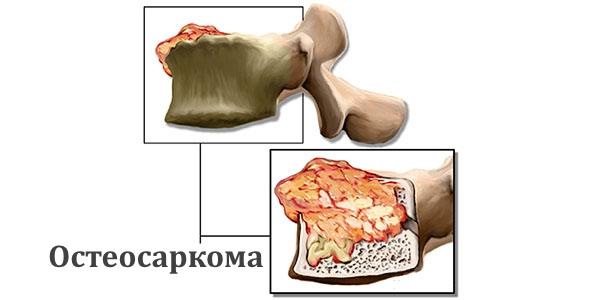 Схема остеосаркомы позвонков