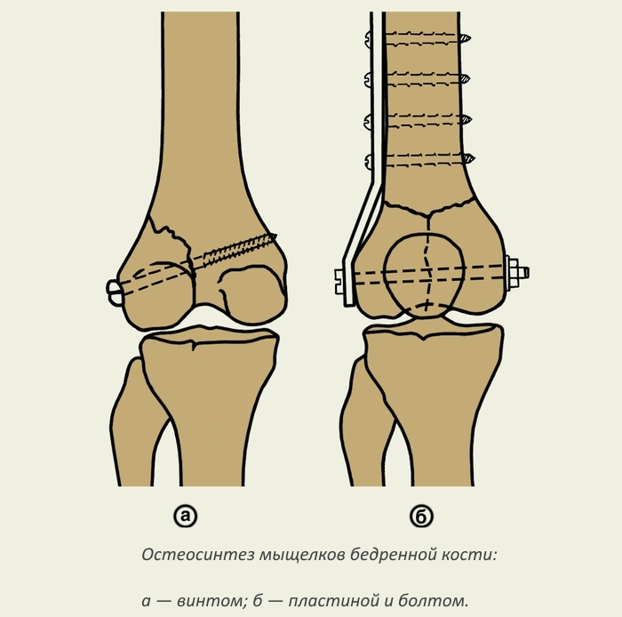 Остеосинтез мыщелков бедренной кости