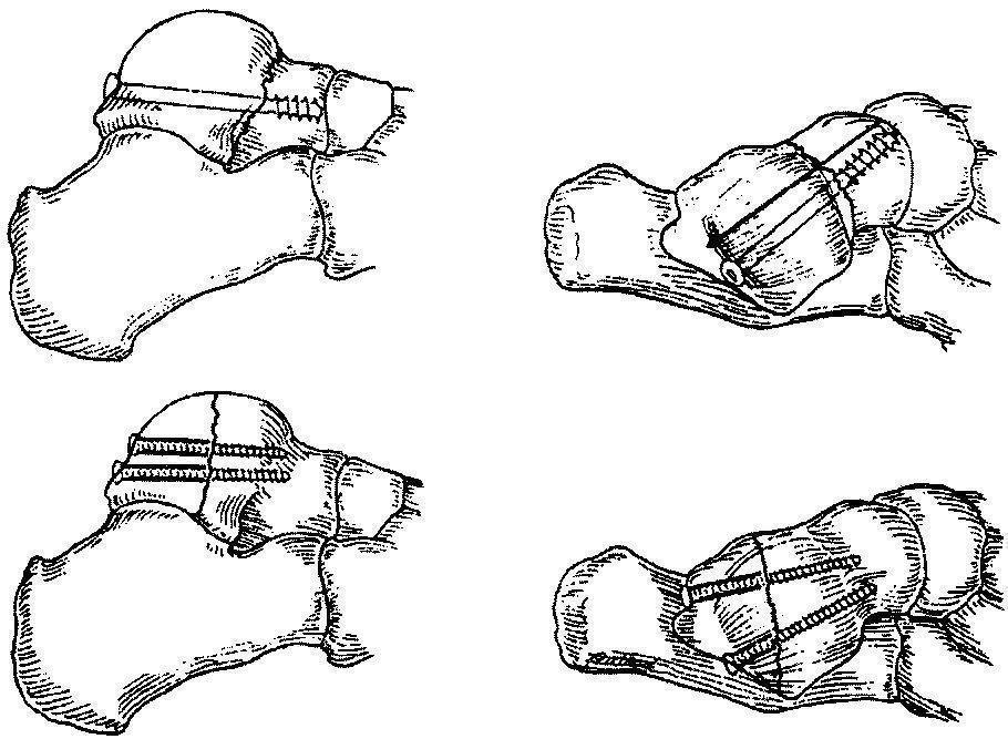 Остеосинтез при переломах таранной кости