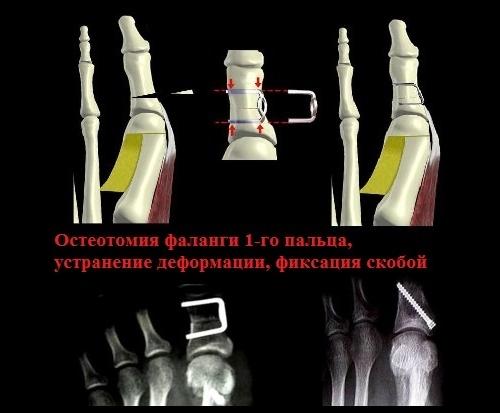 Остеотомия пальца стопы винтом