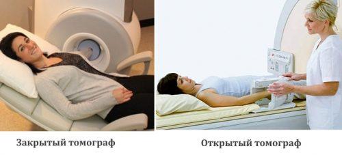 Открытый и закрытый томограф