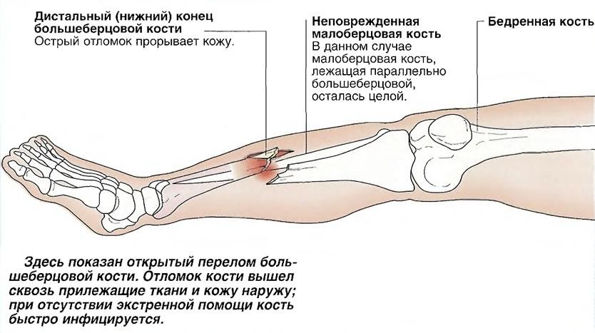 Открытый перелом большеберцовой кости