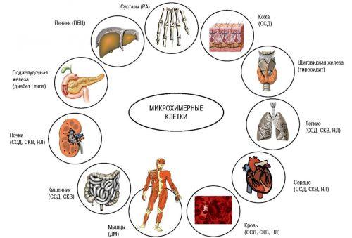 Парожаение орагнов при аутоимунном артрите