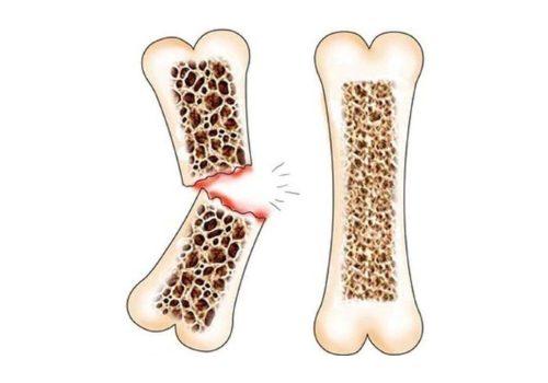 Перелом кости из-за развития остеопроза