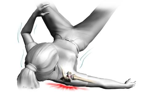 Травма перелом плеча