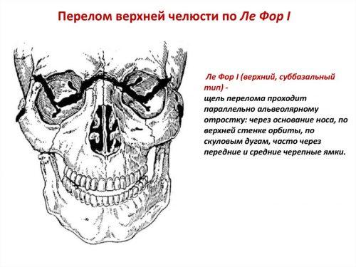Перелом верхней челюсти по типу Ле Фор 1