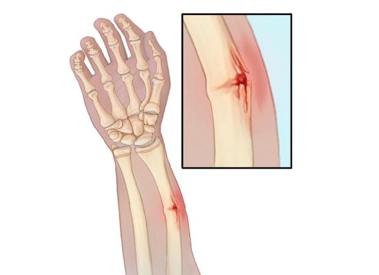 Поднадкостничный перелом по типу зеленой веточки
