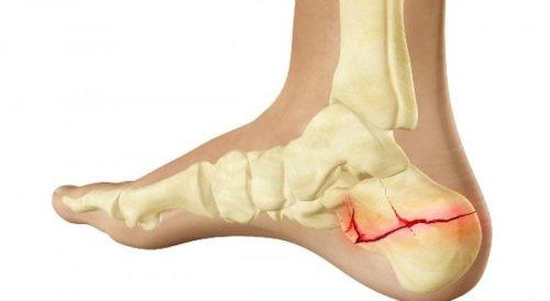 Травма перелом пяточной кости