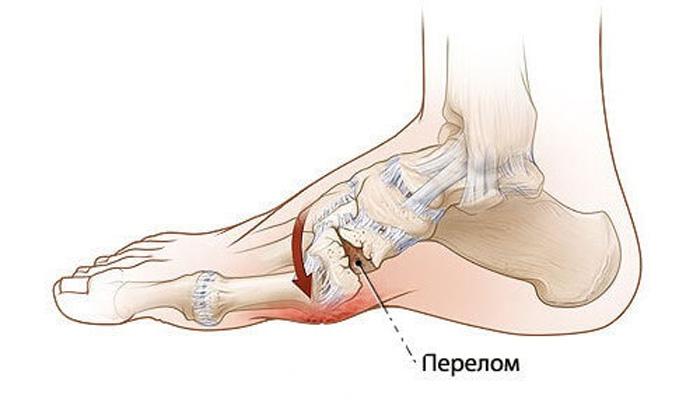 Травма перелом костей стопы