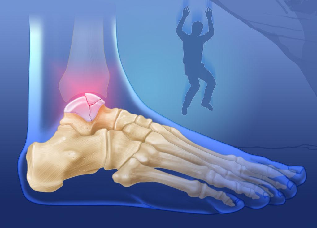 Травма перелом таранной кости