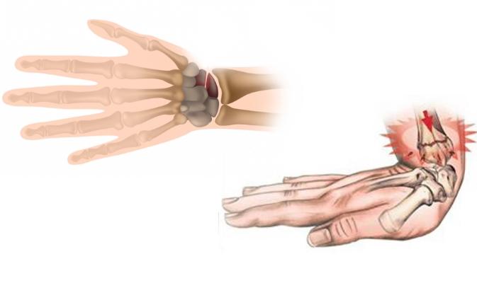 Переломы в области кисти