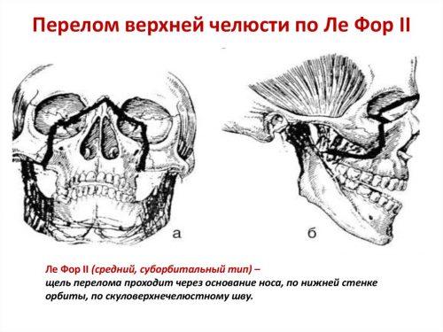 Перелом верхней челюсти по типу Ле Фор 2