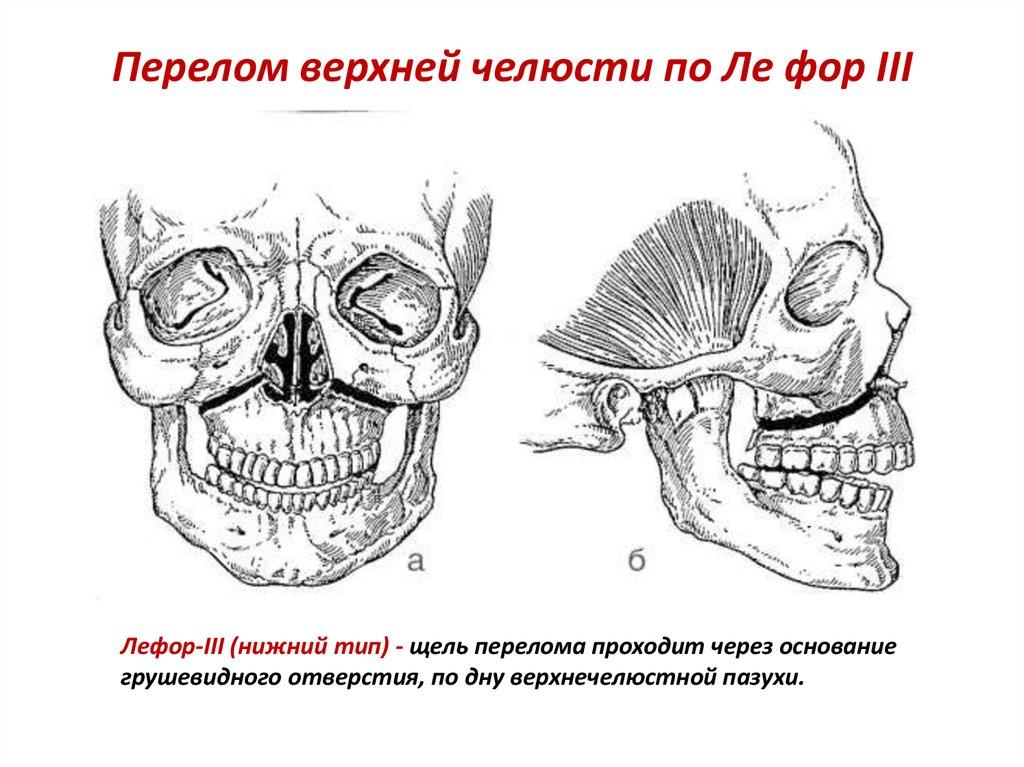 Перелом верхней челюсти по типу Ле Фор 3