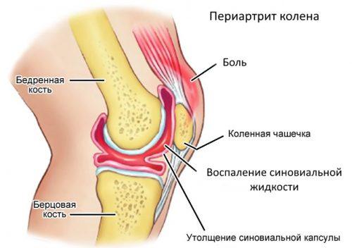 Периартрит - воспаление околосуставных тканей