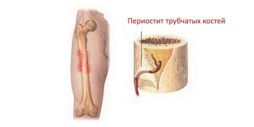 Периостит трубчатых костей