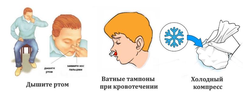 Первая помощь при переломе носа