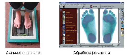 Плантография плоскостопия