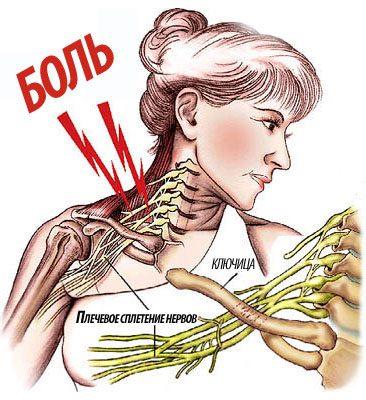 Боль при плексите плечевого сустава