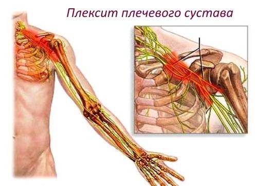 Воспаление нервов плечевого сустава