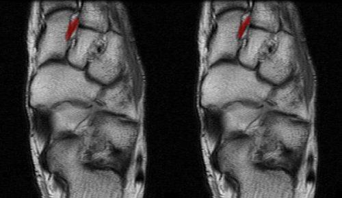 Подошвенный лигаментит на МРТ
