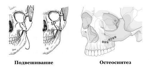 Подвешивание и остеосинтез при переломе скулы