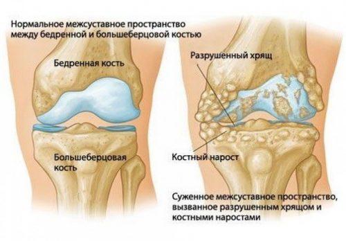 Полиартрит коленного сустава