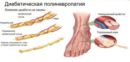 Полиневропатия