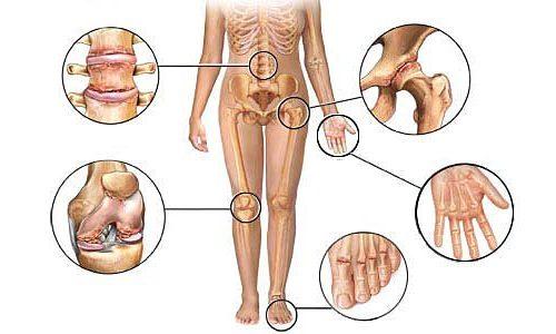 Полиостеоартроз суставов и хрящей