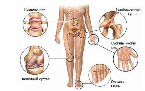 Поражение суставов артритом