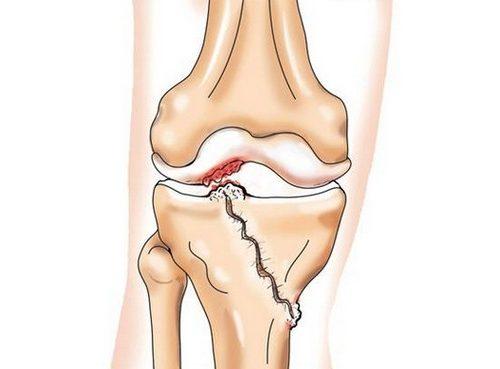 Возникновение артроза на фоне травмы