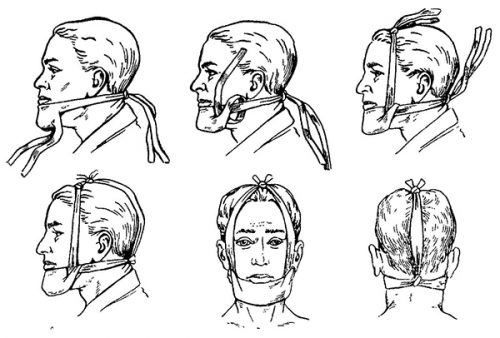 Пращевидная повязка для челюсти