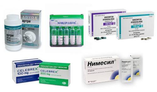 Препараты при боли в тазобедренном суставе