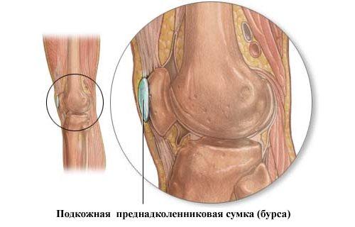 Схема препателлярного бурсита коленного сустава
