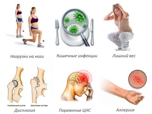 Частые причины артрита