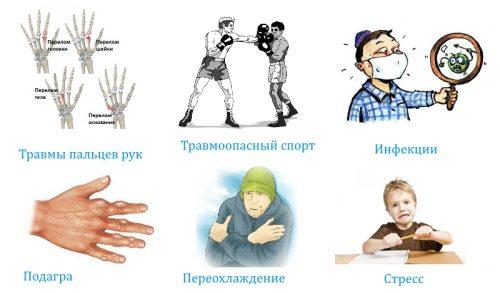 Причины артроза пальцев рук