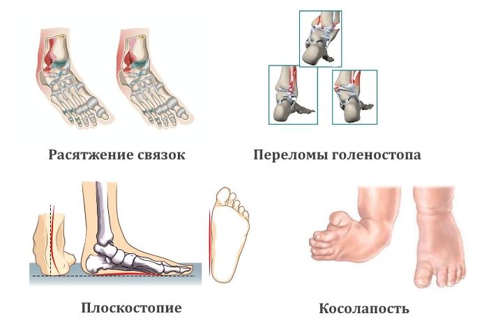 Причины боли в голеностопном суставе