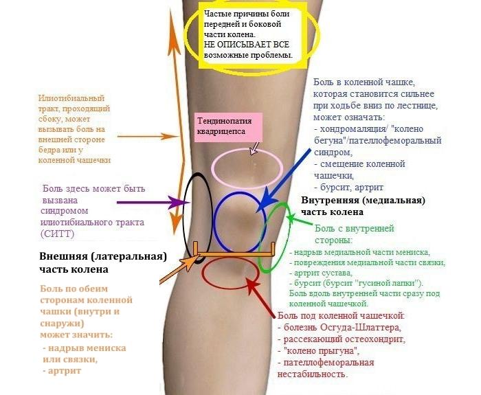 Причины боли в колене по локализации