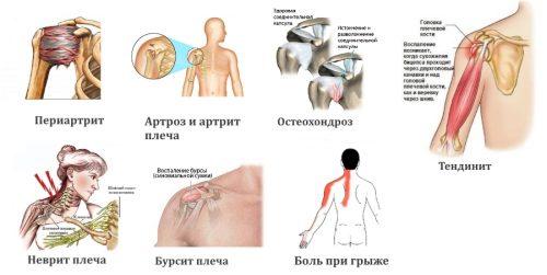 Причины боли в области плеча