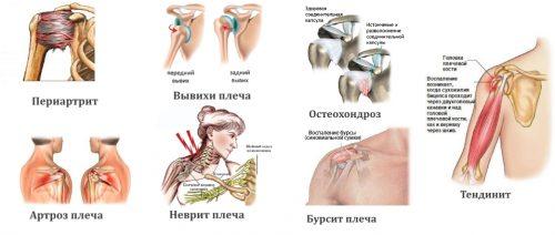 Заболевания — причины боли в плече