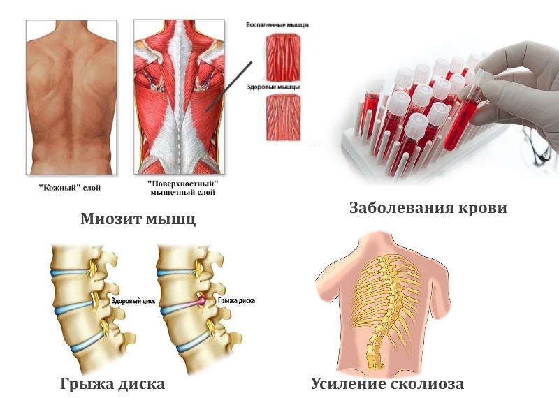 Заболевания — причины боли в спине