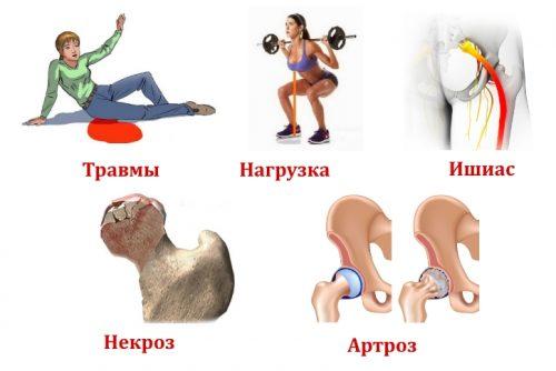 Причины боли в тазу и ноге
