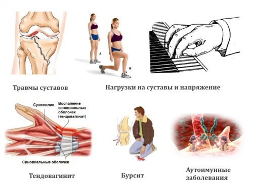 Причины гигромы