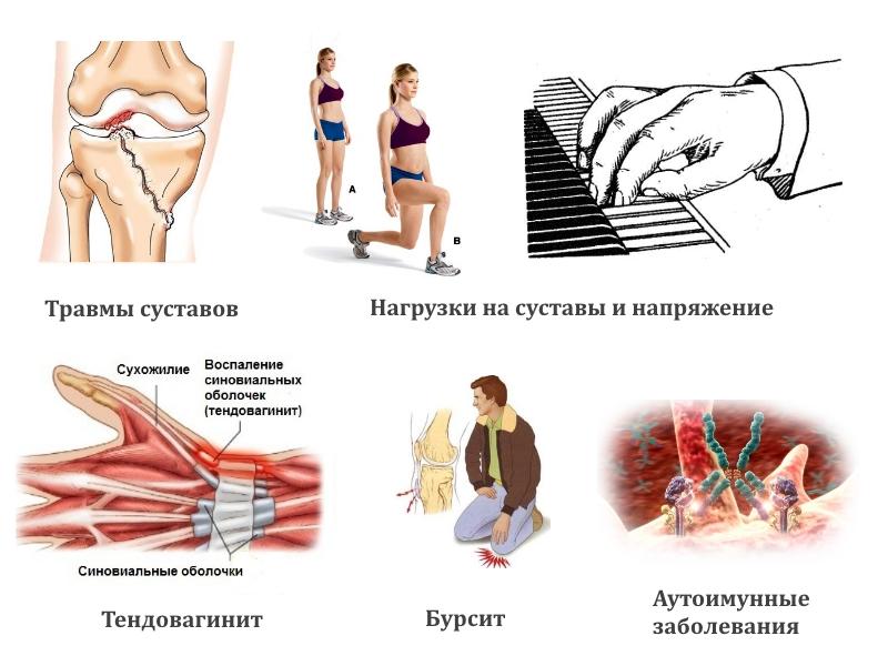 Причины появления гигромы