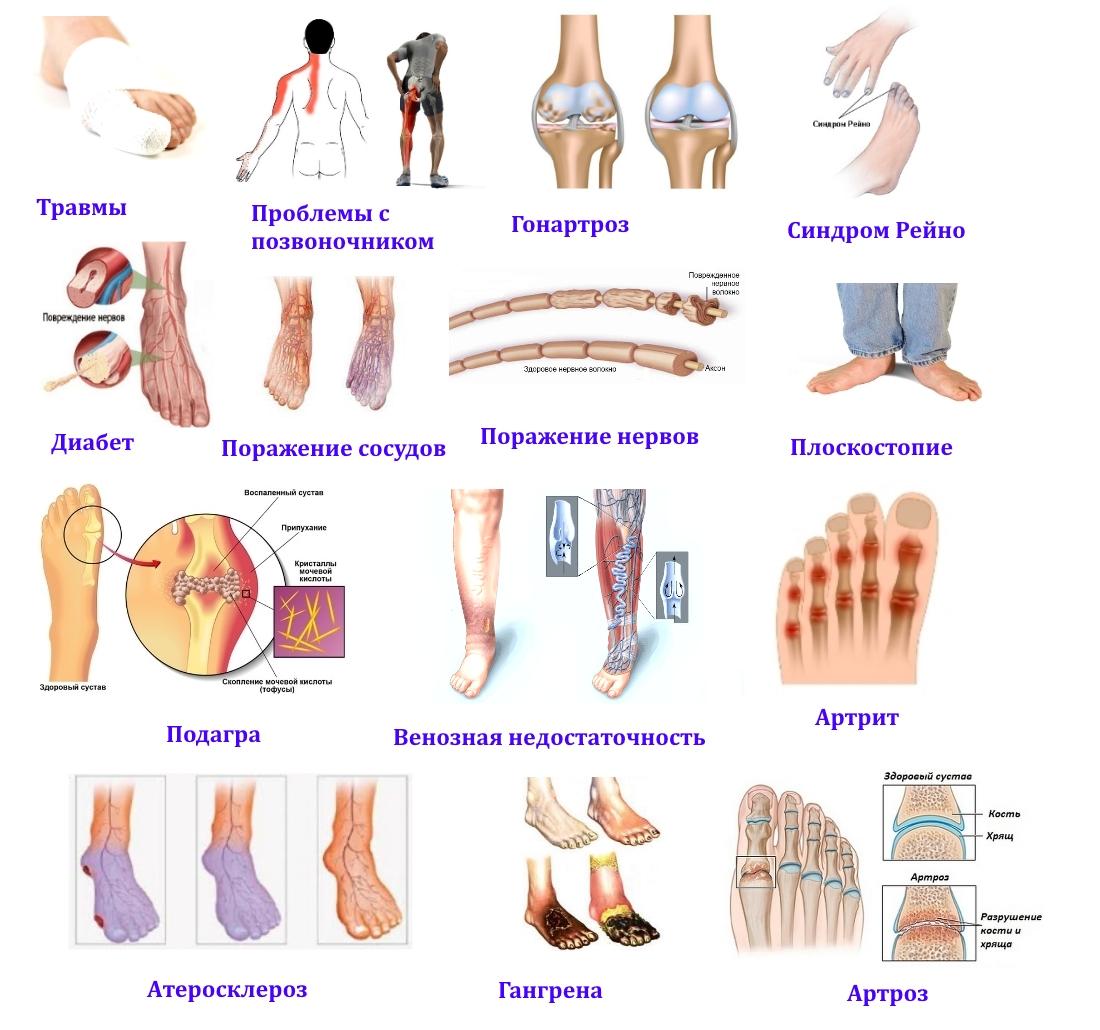 Причины онемения большого пальца стопы