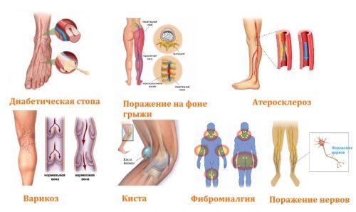 Причины онемения ног в голени