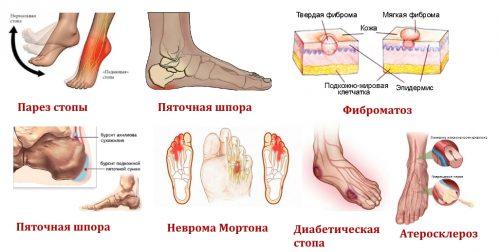 Причины онемения пятки