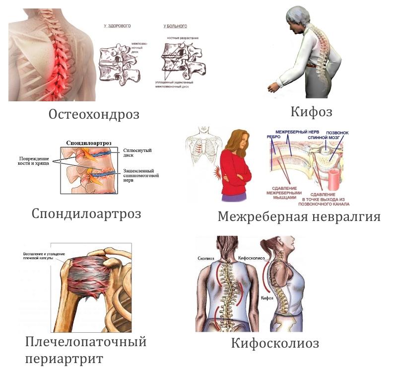 Причины онемения в спине