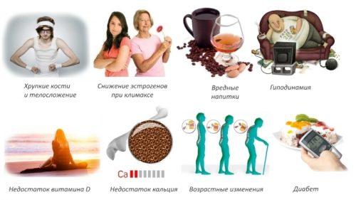 Причины остеопении
