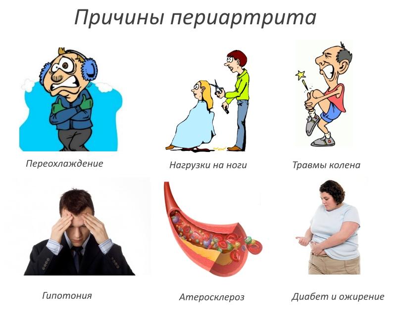 Причины периартрита